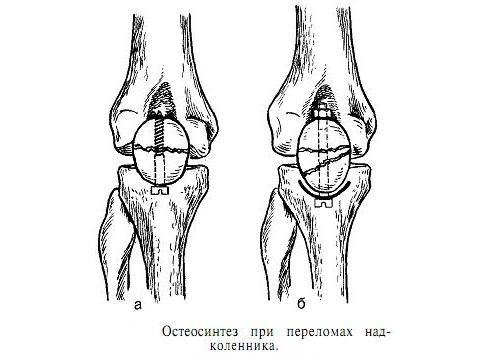 Остеосинтез при переломе коленной чашечки