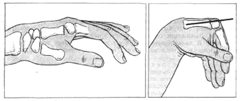 Остеосинтез при переломе пястной кости