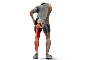 Боли в ноге и онемение