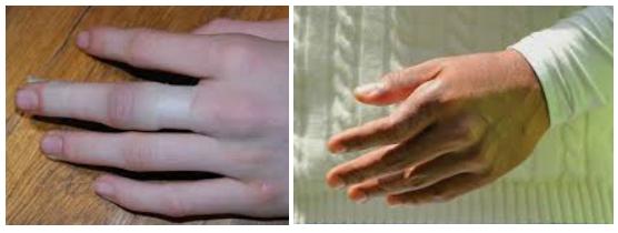Отек и смещение при переломе пальца