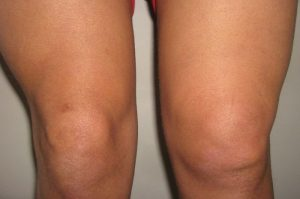 Боль и отек колена