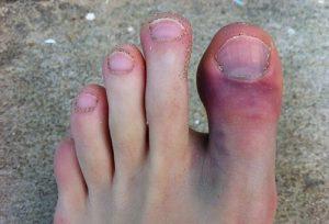 Отек пальца на ноге