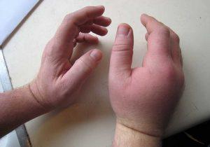 Опухание при аллергическом артрите