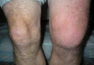 Отекание колена