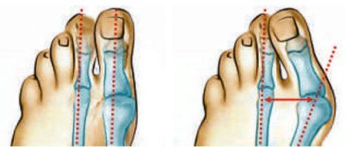 Отклонение при вальгусной деформации стопы