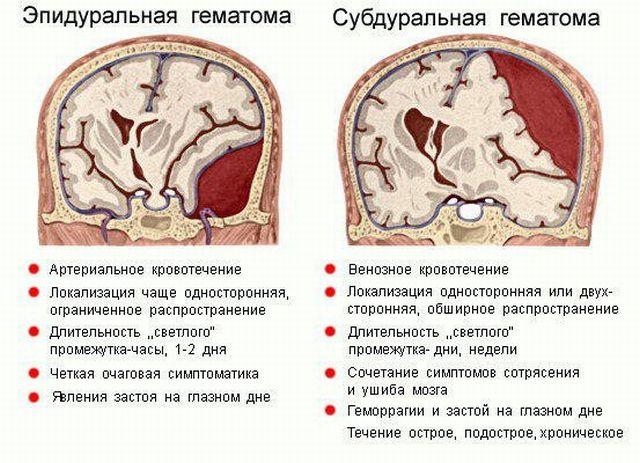 Признаки эпидуральной и субдуральной гематом