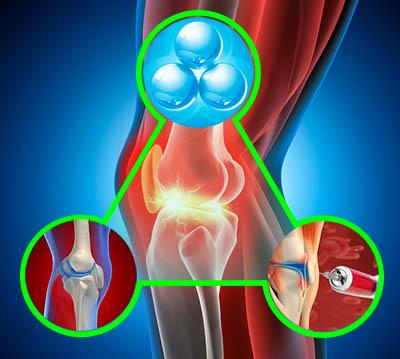Озонотерапия суставов