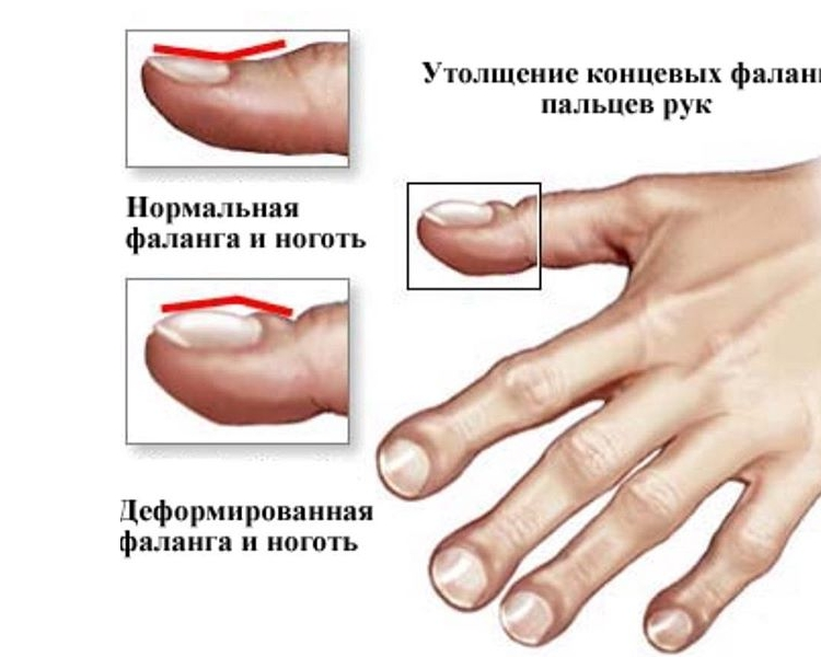 Пальцы Гиппократа