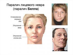 Паралич лица