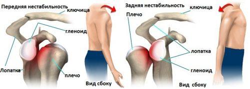 Передняя и задняя нестабильность плечевого сустава