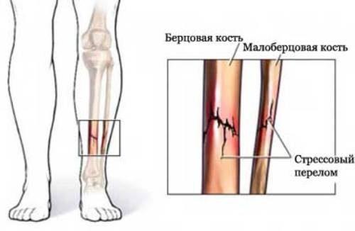 Переломы берцовых костей