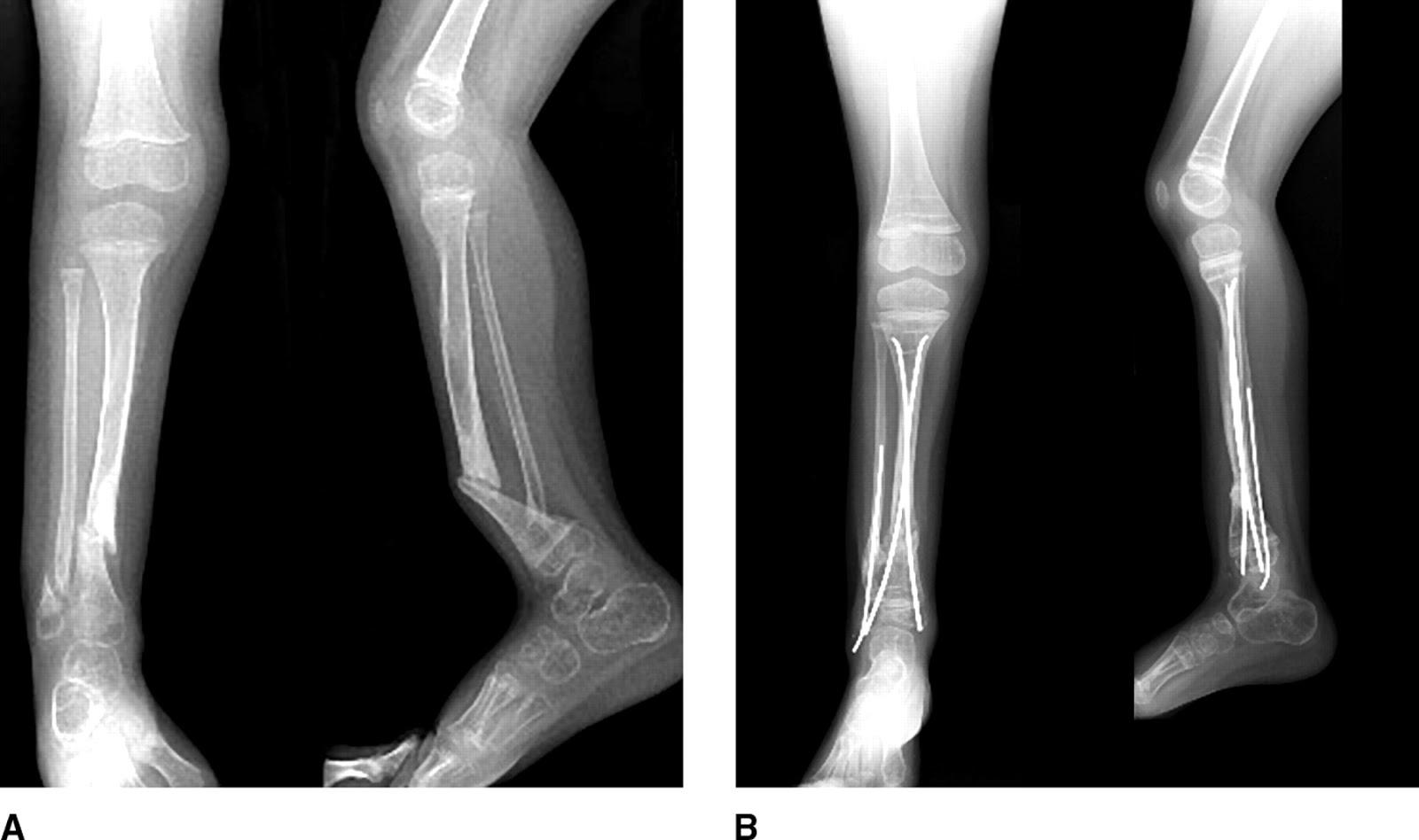Рентген диагностика перелома большеберцовой кости