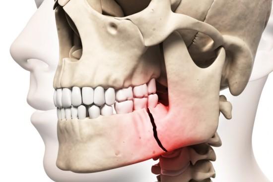 Перелом костей челюсти