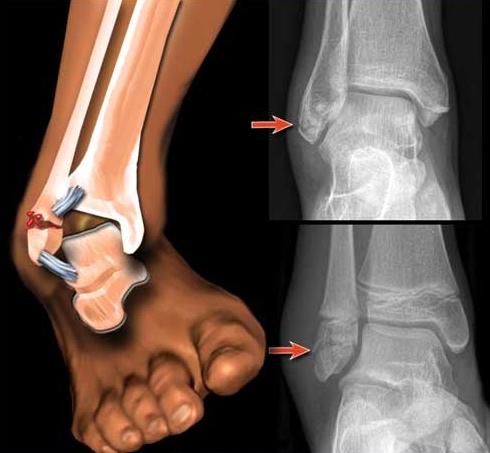 Перелом голеностопа на рентген снимке