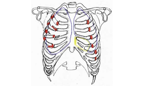 Перелом костей грудной клетки