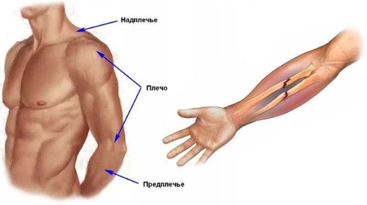 Перелом костей предплечья
