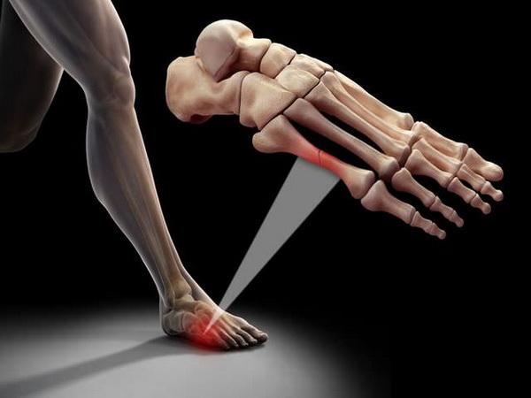 Травма перелом мизинца на ноге