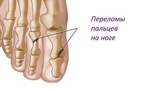 Травма перелом пальцев на ноге
