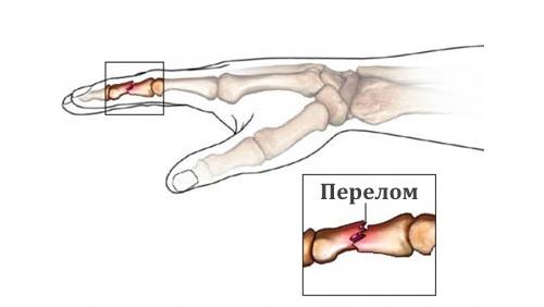 Схема перелома пальца на руке