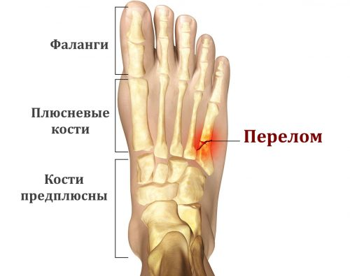 Возникновение перелома плюсневой кости стопы