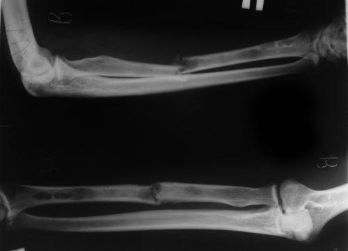 Перелом предплечья на рентгене