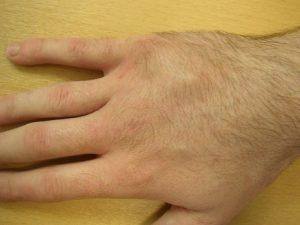 Деформация и отек при переломе пястной кости