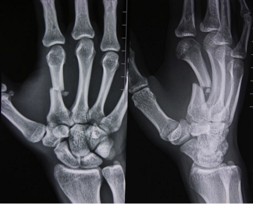 Перелом пястной кости на рентген снимке