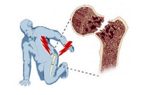 Травма перелом шейки бедра