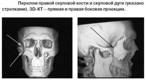 Перелом скуловой кости на КТ снимке