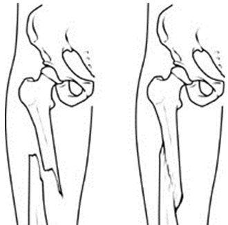 Перелом со смещением кости