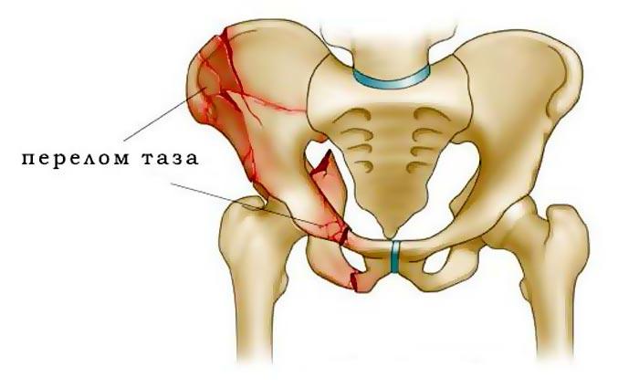 Травма перелом таза