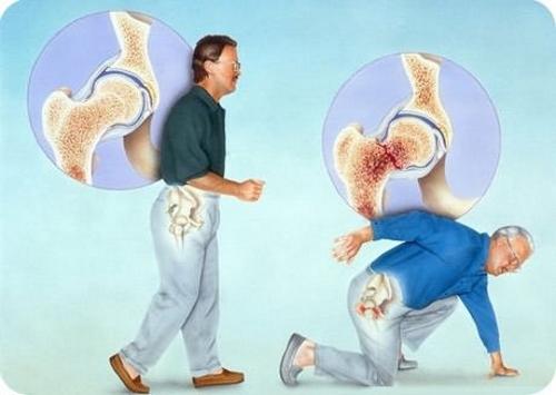 Перелом шейки бедра на фоне остеопороза