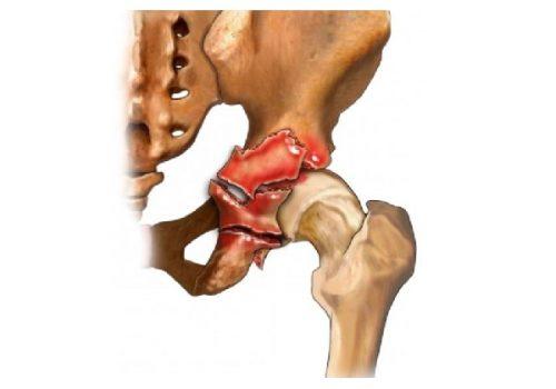Травма перелома вертлужной впадины