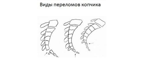 Переломы копчика