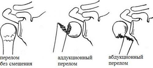 Виды переломов плеча