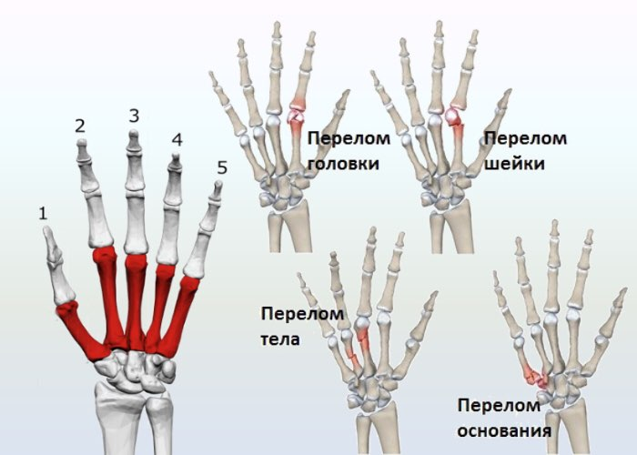 Варианты переломов пястных костей