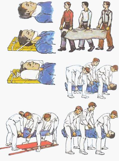 Переноска при травме позвоночника