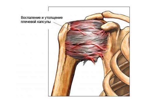 Схема периартрита плечевого сустава