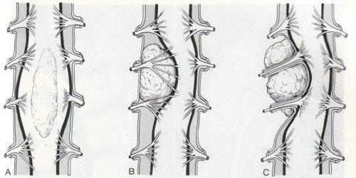 Периневральная киста позвоночника