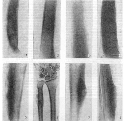 Периостит на рентген снимке