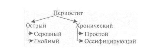 Классификация периостита