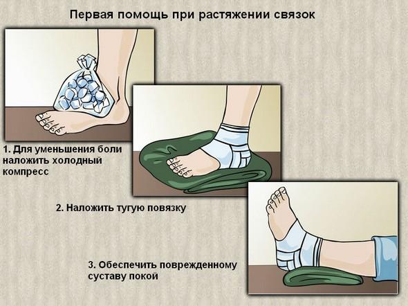 Первая помощь при травме голеностопа