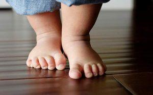 Выявление вальгусной деформации при первых шагах ребенка