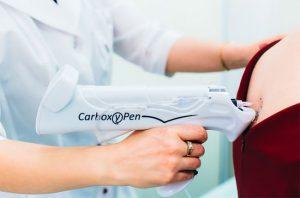 Пистолет для карбокситерапии