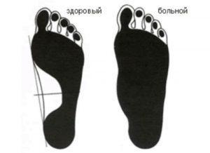 Плантография стопы для определения вальгусной деформации