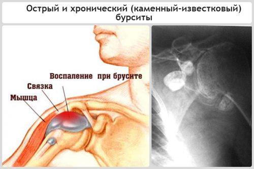 Плечевой бурсит на рентгене
