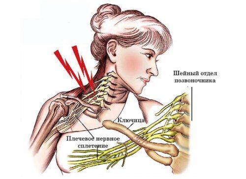 Схема плечевого неврита