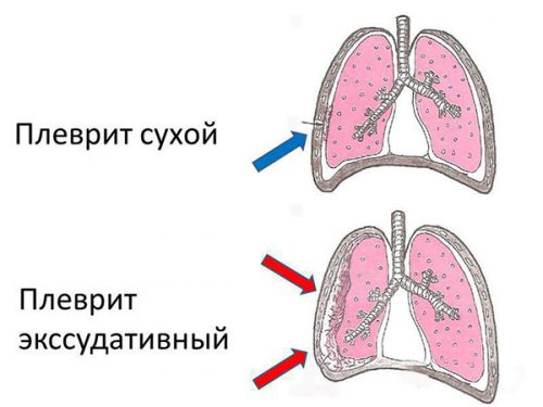 Плевриты