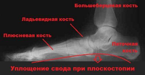 Плоскостопие на рентген снимке