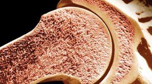 Повышение плотности кости